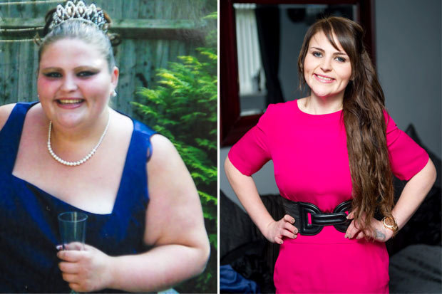 A-after -befor weight loss (2)